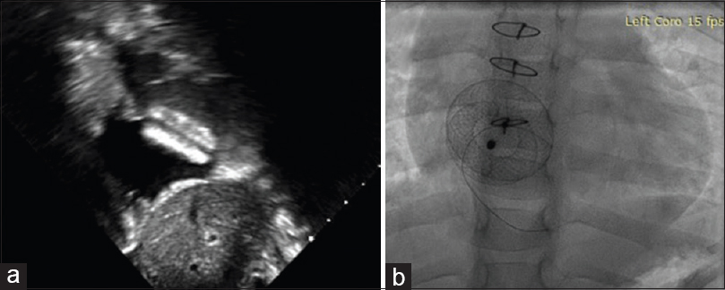 Figure 2: (a) Echocardiogram after percutaneous device closure showing good device position. (b) Fluoroscopic image after transcatheter device deployment
