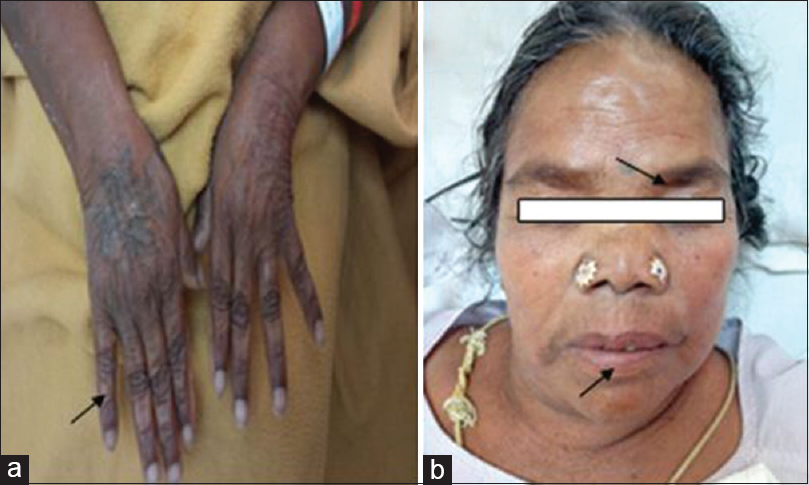 Figure 2: (a) Swollen fingers due to anaphylaxis. (b) Periorbital and facial edema, swollen lips
